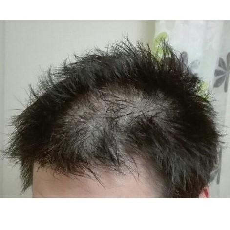 2018年4月の髪の状態