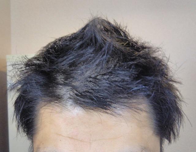 2018年11月26日の髪の様子