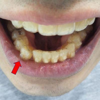 犬歯が唇に接する