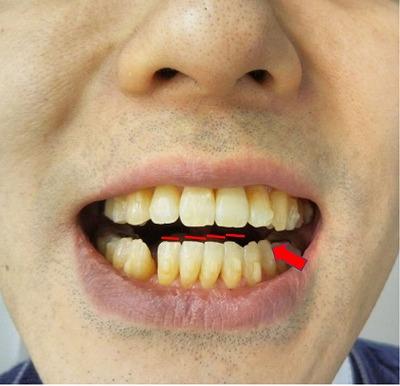 200下の前歯が倒れている図
