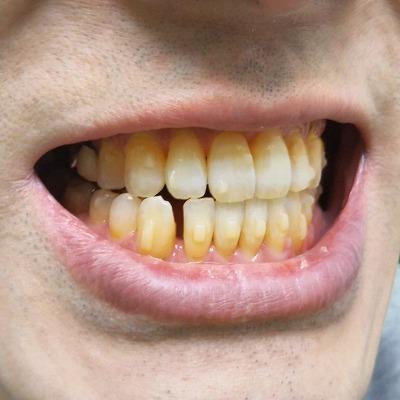 200121_歯の隙間