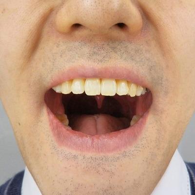 20200121_#54上の歯の傾き